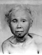 ウェルナー症候群が日本人に多い理由は、最も大きな要因に、日本人の祖先にウェルナー症候群原因遺伝子を持つ人が  他地域より多く存在していたという可能性が考えられ